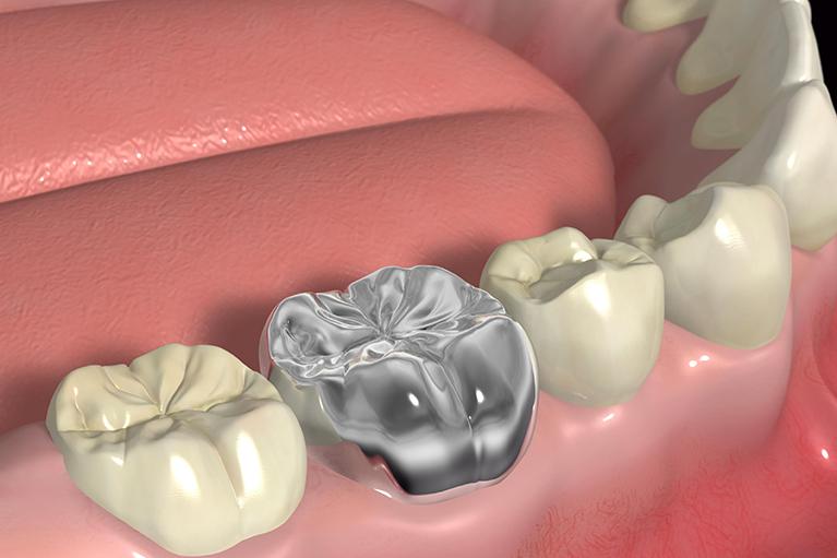 銀歯やすきっ歯を治したい方へ