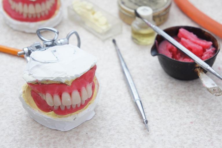 当院における入れ歯の治療